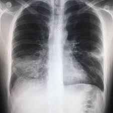 Вирусная пневмония