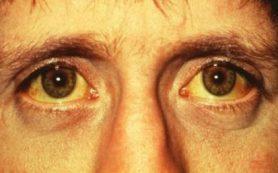 Существует прямая связь между количеством ливней и лептоспирозом