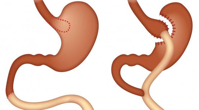 Шунтирование желудка продлевает жизнь