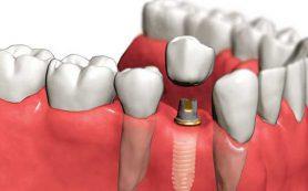 Что такое зубные импланты