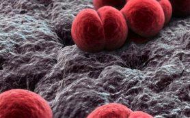 Менингококк: как не пропустить инфекцию