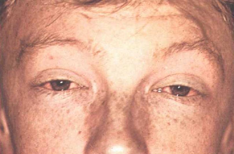 Причины заболевания лептоспирозом