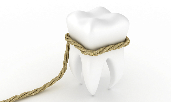 Хирургическое удаление зубов