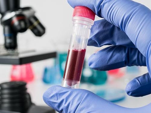 Иммуноонкология: когда революционный метод лечения рака доберется до России