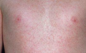 Причина сыпи — вирусные инфекции