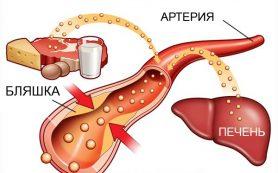 6 продуктов, которые содержат плохой холестерин