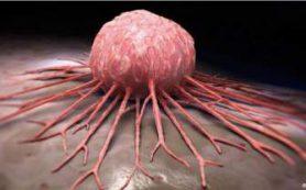 В Украине количество больных раком растет угрожающими темпами