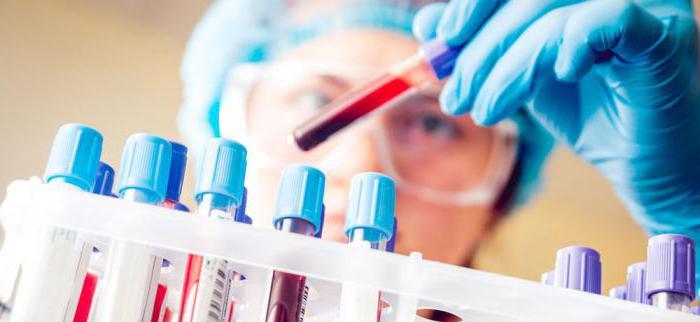 Анализ крови клинический