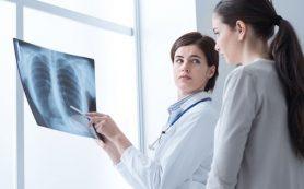 Перенесенный грипп в 100 раз повышает риск заболеть пневмококковой пневмонией