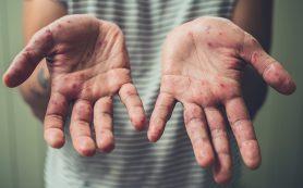 Сыктывкарцы сообщают в соцсетях о вспышке вирусе Коксаки: как дело обстоит на самом деле?