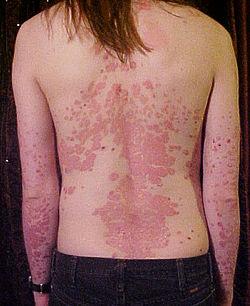 Вспышка псориаза: 6 провоцирующих факторов