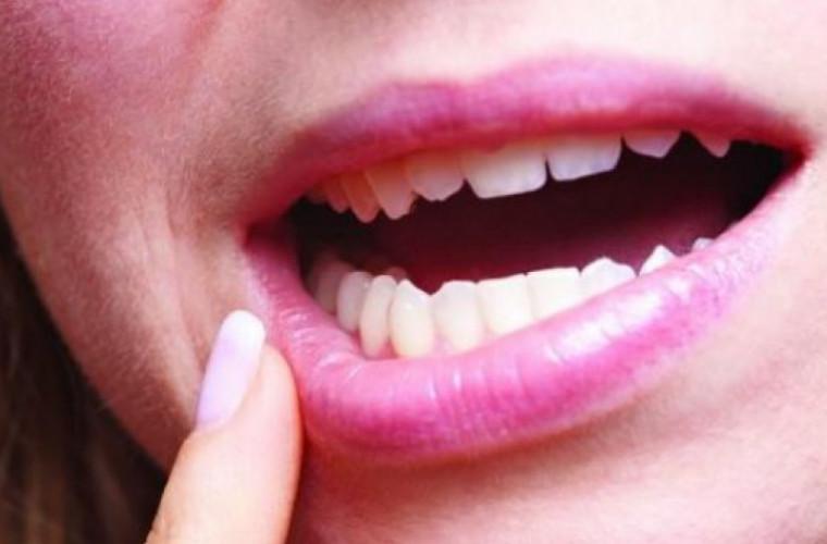 Почему возникает стоматит и что это такое?