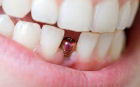 Протезирование зубов. Зубные имплантаты — что это такое?