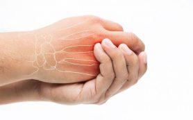 Диагностика внутренних заболеваний кистей рук