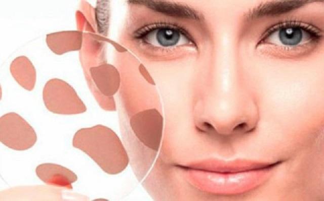 Отражение болезней на нашем лице