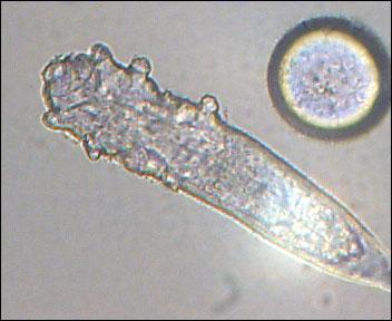 Какие паразиты живут наресницах ибровях