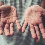 Корь: зачем делать прививку и какие сдавать анализы