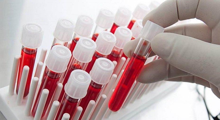 Найти и обезвредить: по каким признакам можно определить тромб