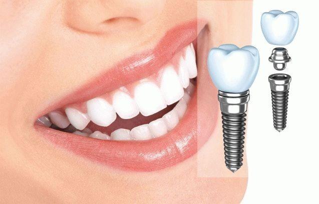 Качественные услуги стоматологического центра Angeldent