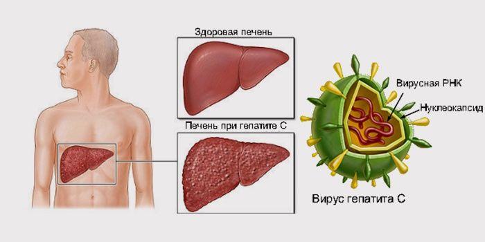 Вирусный гепатит С: пути передачи и профилактика