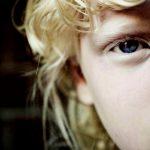 Альбинизм: загадка природы