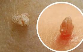 Папилломы появляются из за паразитов