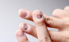 Псориаз ногтей: болезнь и фактор риска
