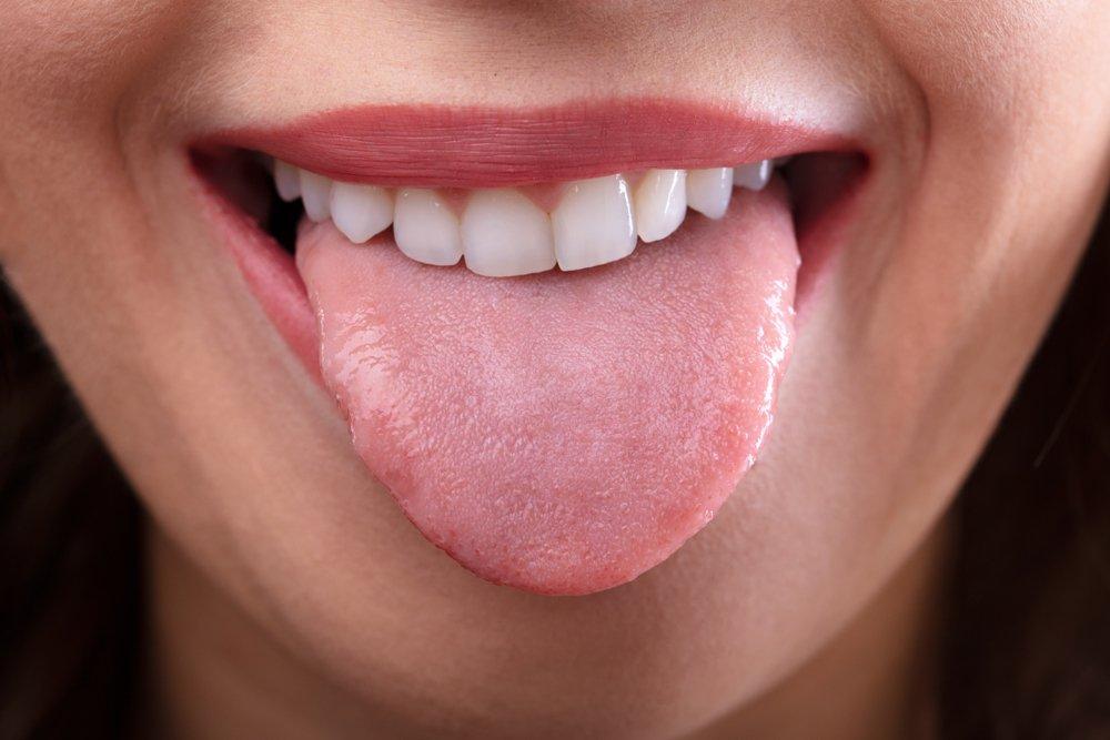 Похудение языка снижает риск апноэ во сне