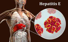 Гепатит Е