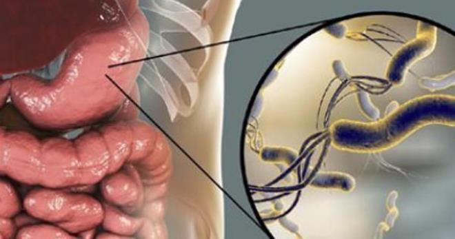 Хеликобактер пилори – симптомы, на которые важно обратить внимание
