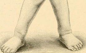 X-образные ноги