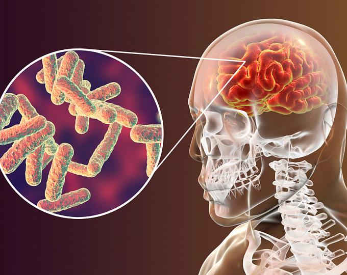 Связь между вакцинацией против менингококка и инвазивной менингококковой инфекцией