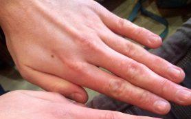 Как выглядит аллергия на холод – и как лечить