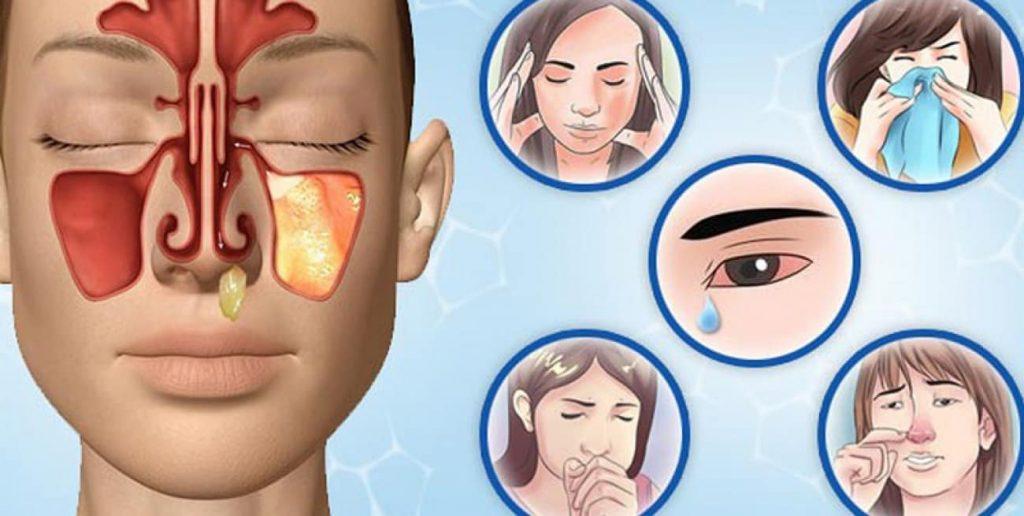 Первые симптомы гайморита. Что делать?