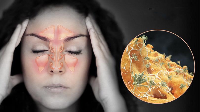 Как защитить глаза от коронавируса?