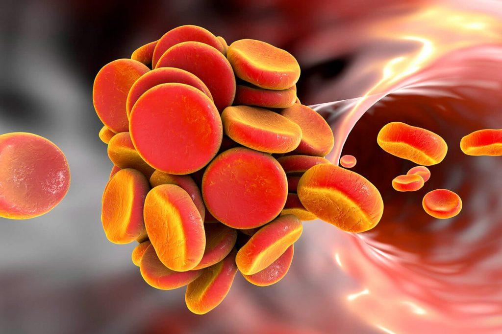 Модифицированный вирус герпеса победил меланому последней стадии