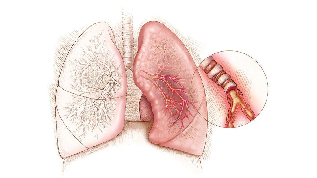 Аллергический трахеобронхит