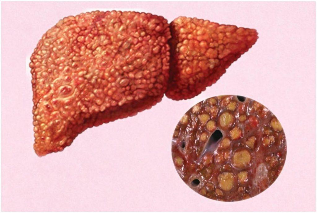 Гепатит лекарственный хронический: из-за чего он возникает