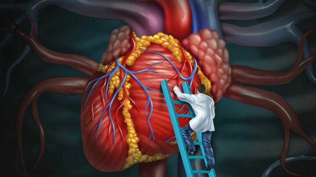 Повышен холестерин в крови, как понизить уровень до нормы?