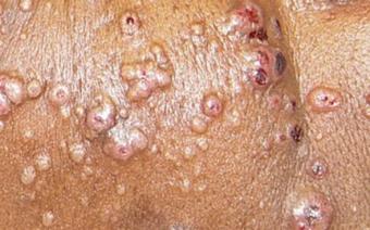 Криптококкоз: этиология заболевания