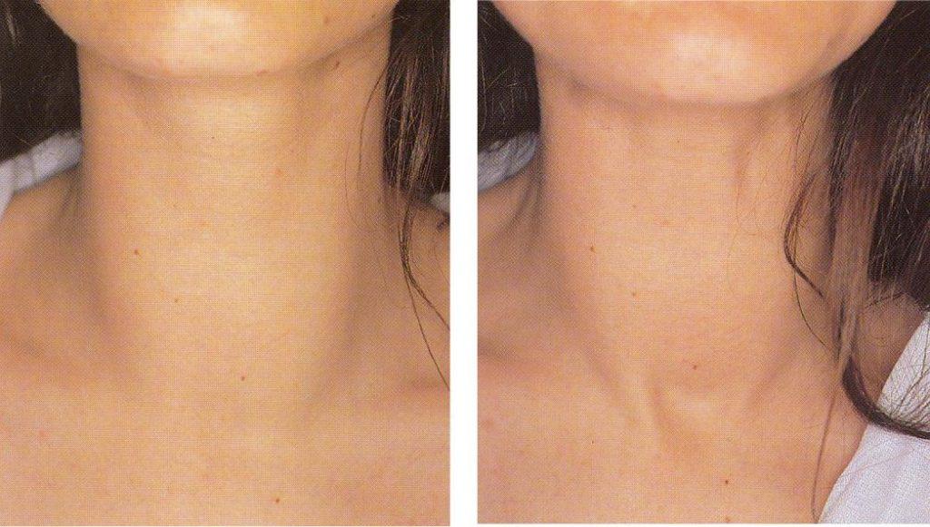 Как проверить щитовидную железу