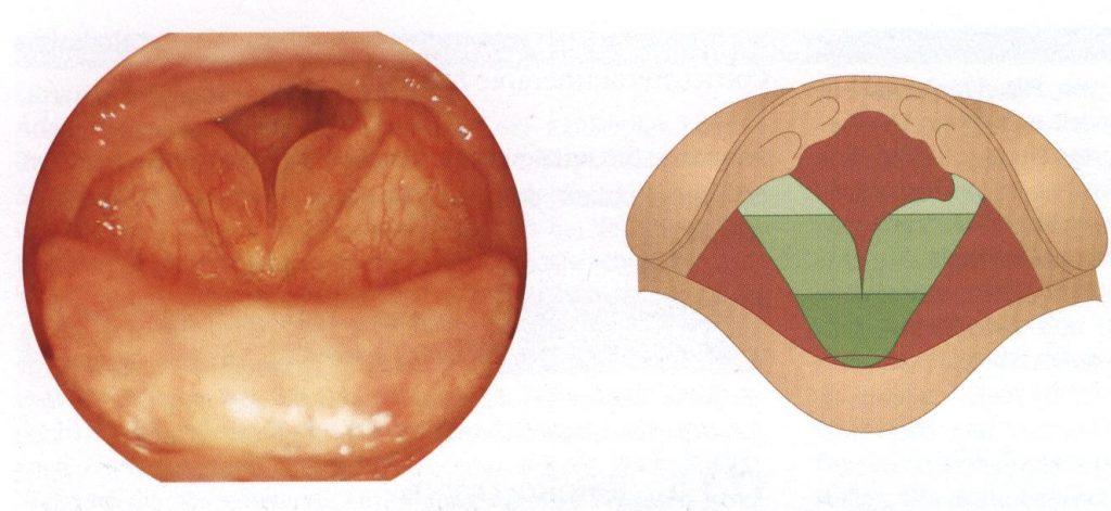Хронический гиперпластический ларингит