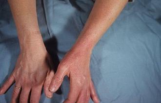 Болезнь рожа заразна или нет?