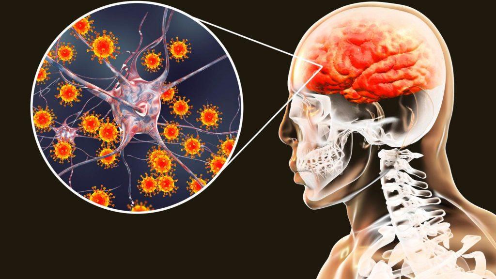 Осторожно, менингит! Как противостоять грозной инфекции