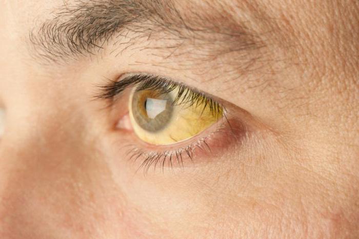 Симптомы и лечение желтухи