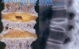 Физиология костно-мышечной системы. Остеопороз