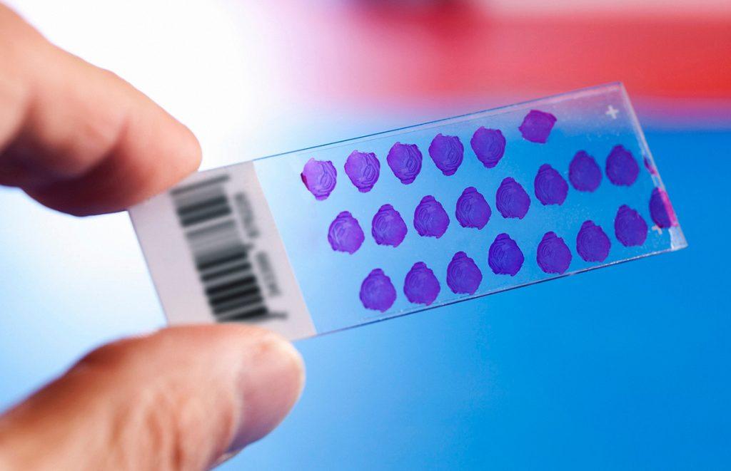 Что надо знать о гемоглобине и как он влияет на самочувствие